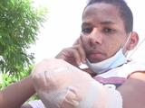 Ayuda de Impacto: A este joven le cortaron la mano con un machete por ser gay